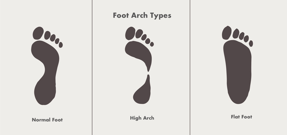 Foot Arch types2